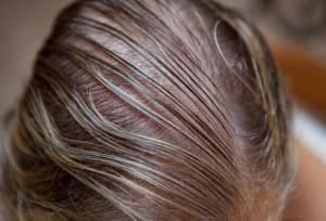 Thin hair 薄い髪イメージ