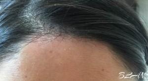 2015年12月湯シャン フケの悩み